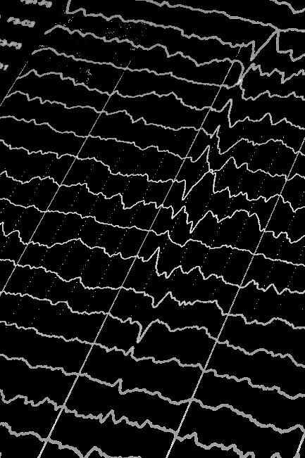 EEG ist die Grundlage für Neurofeedback
